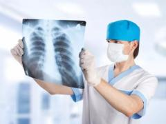 рентгеноскопия при пневмонии