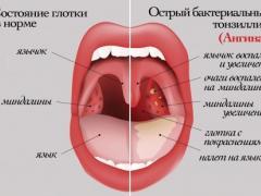 лечение ангины у детей народными методами