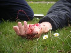 наружное кровотечение что это