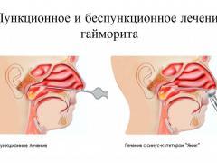 пункционное и беспункционное лечение гайморита