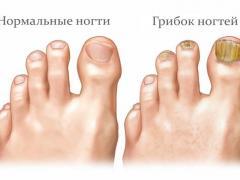 Средства для лечения грибка ногтей на ногах