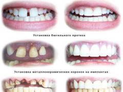 виды зубного протезирования