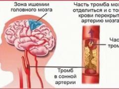 Церебральный склероз