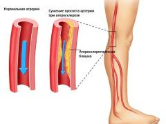 артерии