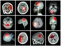 Первые признаки опухоли мозга