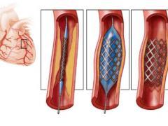 стентирование сосудов сердца