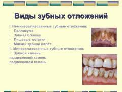 виды зубного налета