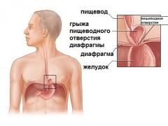 Грыжа пищеводного отверстия диафрагмы и ее лечение народными средствами