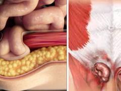 Паховая грыжа у мужчин, симптомы, лечение, возможные последствия