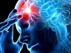 Лекарства при нарушении мозгового кровообращения, их виды, цель назначения