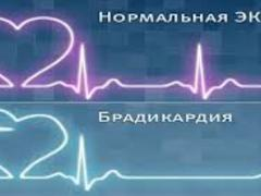 брадикардия и нормальный ритм