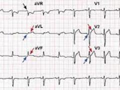 кардиорграмма