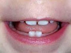 первые зубы у грудничка