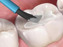 Нанесение фторлака на зубную эмаль