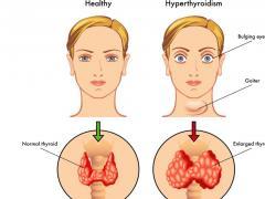 Изменения, связанные с повышенной концентрацией вещества, выделяемого щитовидкой