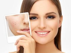лечение шрамов на лице от прыщей