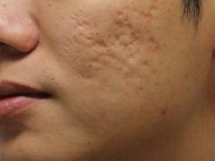 шрамы на лице от прыщей