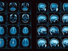 МРТ и компьютерная томография для диагностики гаймоита