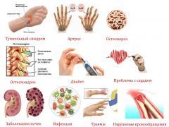 прчины онемения рук