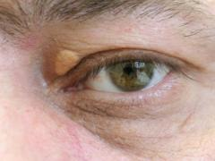 Шишка на верхнем веке глаза, заболевания, причины появления и лечение