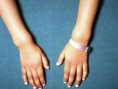 симптомы рахита у детей