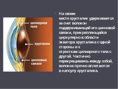 заболевания хрусталика галаз
