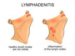 увеличился лимфоузел на шее