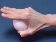 упражнения для рук после перелома