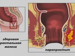 парапроктит и свищ приямой кишки
