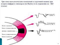 диагностика инфаркта миокарда