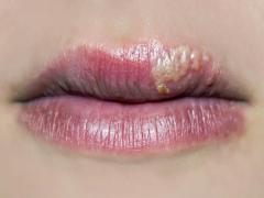 быстро вылечить простуду на губах