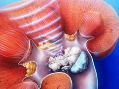 камни в предстательной железе лечение