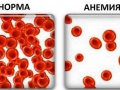 гемоглобин норма и анемия