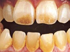 коричневый налет на наружной части зубов