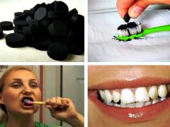 удаление налета и отбеливание зубов активированным углем
