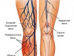 лечение закупорки вен на ногах