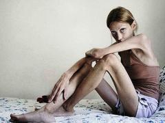 анорексия, физическое истощение организзма и его симптомы
