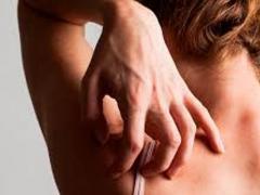 Симптомы чесотки, препараты для лечения чесотки