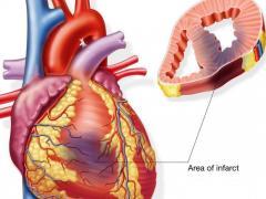 Инфаркт, что это таоке, симптомы и признаки