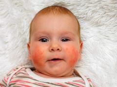 Аллергия новорожденного на смесь