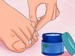 Лечение грибка на ногтяз ног