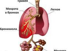 Признаки пневмони у взрослого