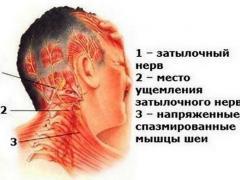 причины головной боли в затылочной части головы