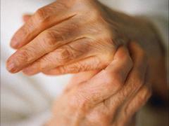 Диагноз артрит – как с этим жить?