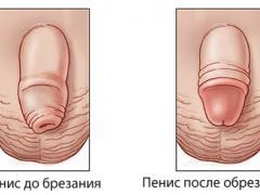 Рубцовый фимоз и его лечение