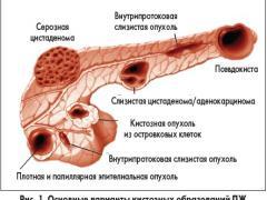 Лечение кисты поджелудочной железы – методы и правила