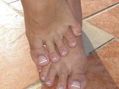 Микоз ногтей - его профилактика и лечение