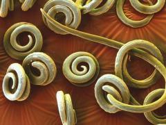 Виды глистов и их лечение