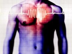 Клиническая картина сердечно-сосудистых заболеваний