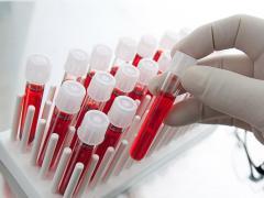 При расшифровке анализа крови определяется уровень лейкоцитов
